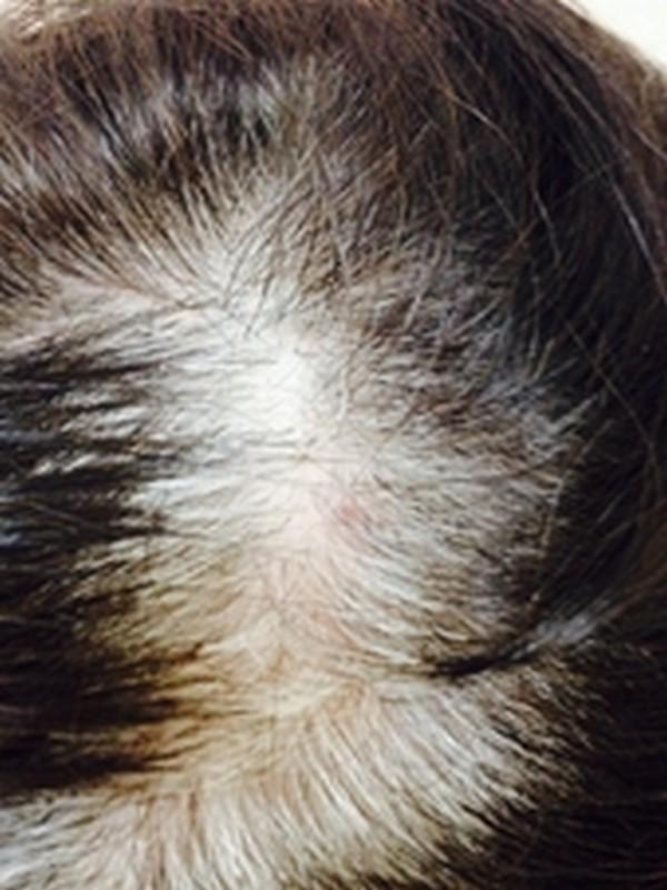 Плазмолифтинг волосистой части головы (до)