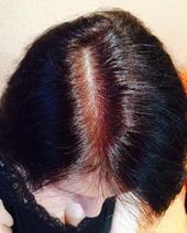 Плазмолифтинг волосистой части головы (после)